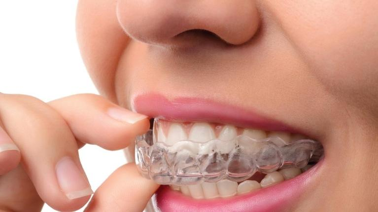 close up of woman using clear aligners from northborough family dental