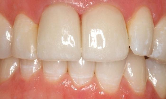 Dental crowns used to replace dark front teeth