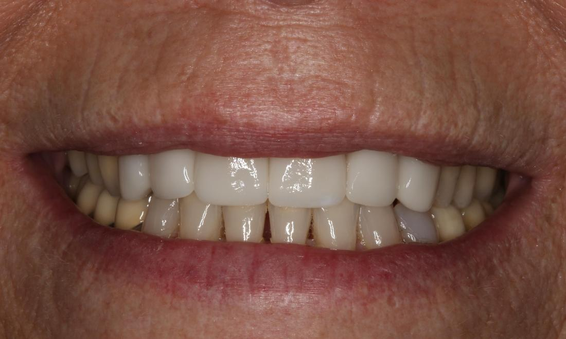 Invisalign and Crown Smile Makeover