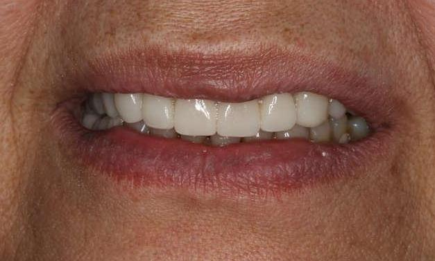 Close up of smile after cosmetic dentistry