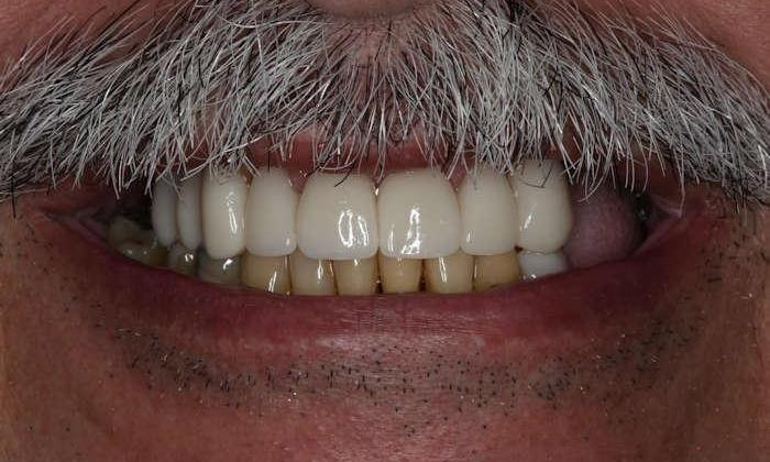 Close up of man's smile after cosmetic dentistry