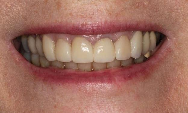 Close up of patient's smile after smile makeover