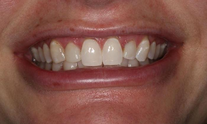 Close up of patient's smile after zoom whitening