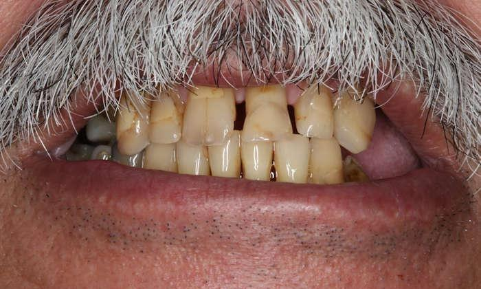 Close up of man's older, yellowed teeth