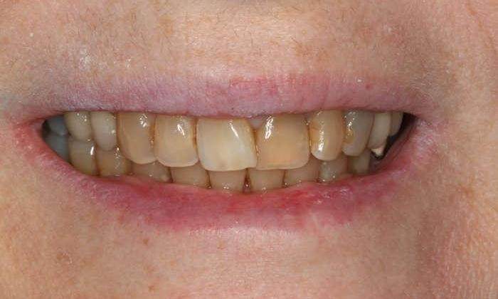 Close up of patient's smile