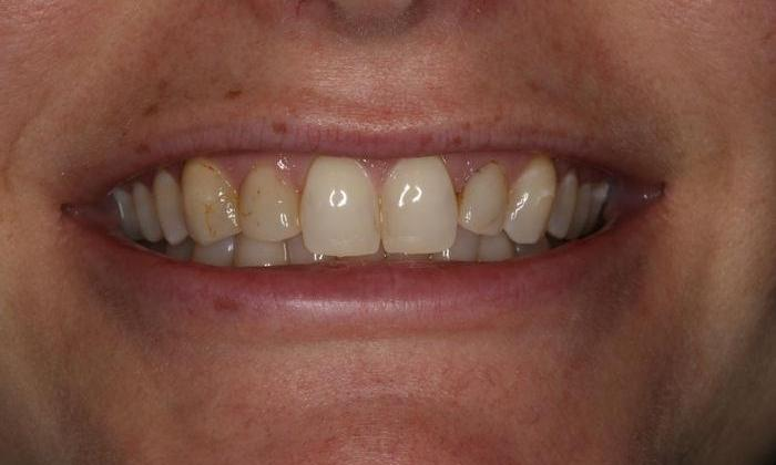 Close up of patient's smile before whitening