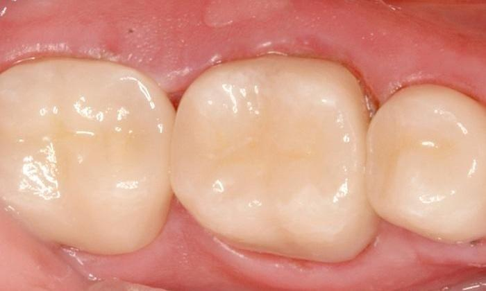 Broken-Porcelain-Fused-to-Metal-Crowns-Replaced-with-All-Porcelain-Crowns-After-Image