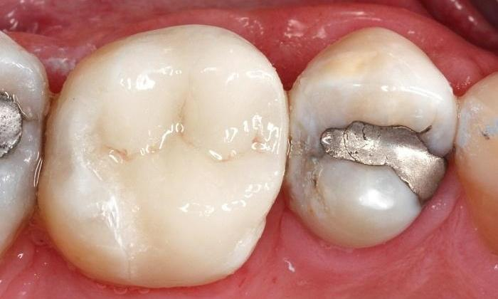 Broken-Silver-Fillings-Replaced-with-a-Crown-After-Image