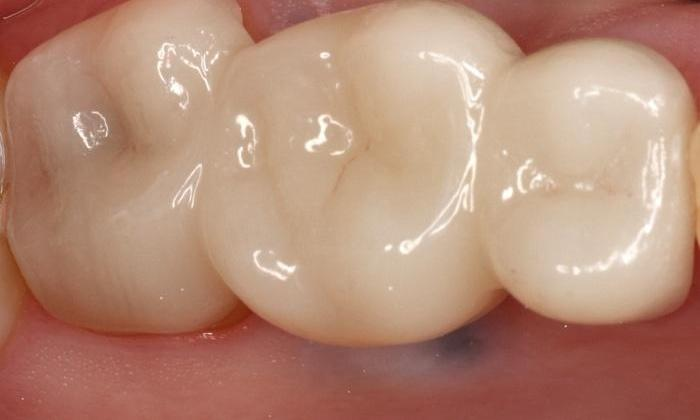 Broken-Tooth-at-Gumline-Restored-with-a-Bridge-After-Image