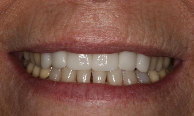Invisalign-and-Crown-Smile-Makeover-After-Image