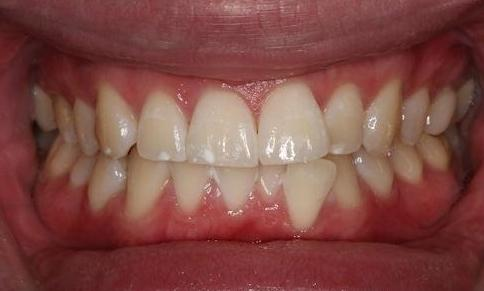 Zoom-Teeth-Bleaching-After-Image