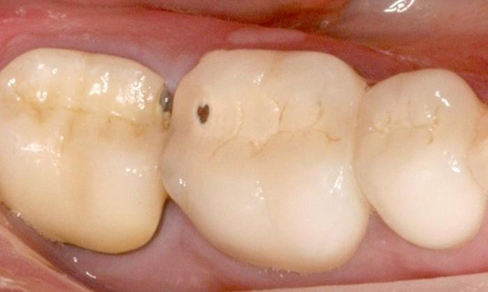 Broken-Porcelain-Fused-to-Metal-Crowns-Replaced-with-All-Porcelain-Crowns-Before-Image