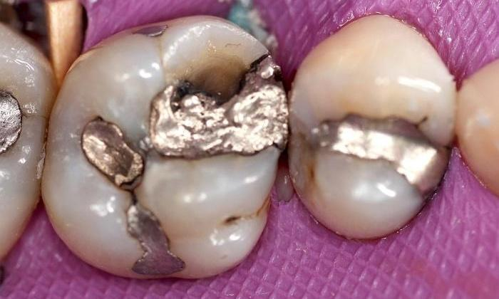 Broken-Silver-Fillings-Replaced-with-a-Crown-Before-Image