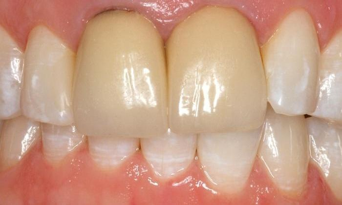 Dark-Front-Teeth-Crowns-Replaced-Before-Image