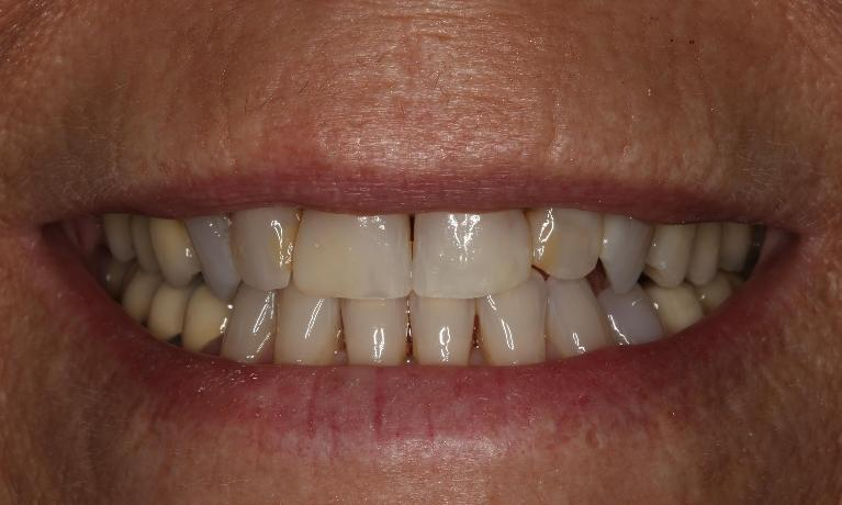 Invisalign-and-Crown-Smile-Makeover-Before-Image