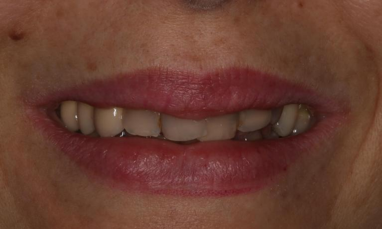 Same-Day-Smile-Makeover-Before-Image