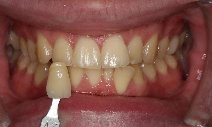 Zoom-Teeth-Bleaching-Before-Image