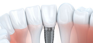 Northborough Family Dental | 3D Implant