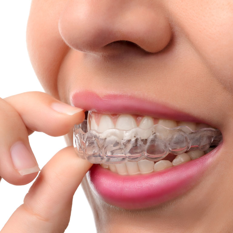 Northborough Family Dental | Invisalign